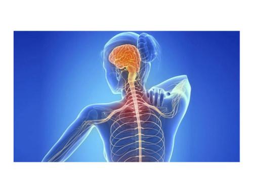 Se diagnostican unos 2.000 nuevos casos anuales de esclerosis múltiple en España